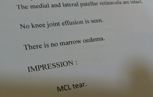MRI first impression - MCL tear